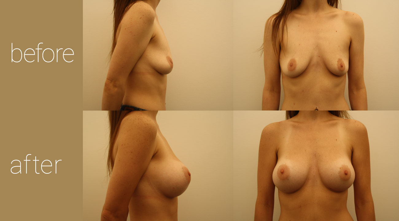 26 year old female | six months status post, 350cc smooth, round submuscular gel implants