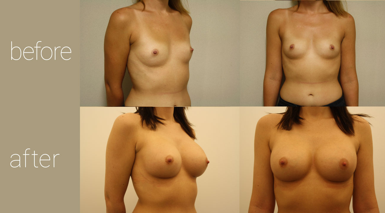 26 year old female | six months status post, 425cc smooth, round submuscular gel implants
