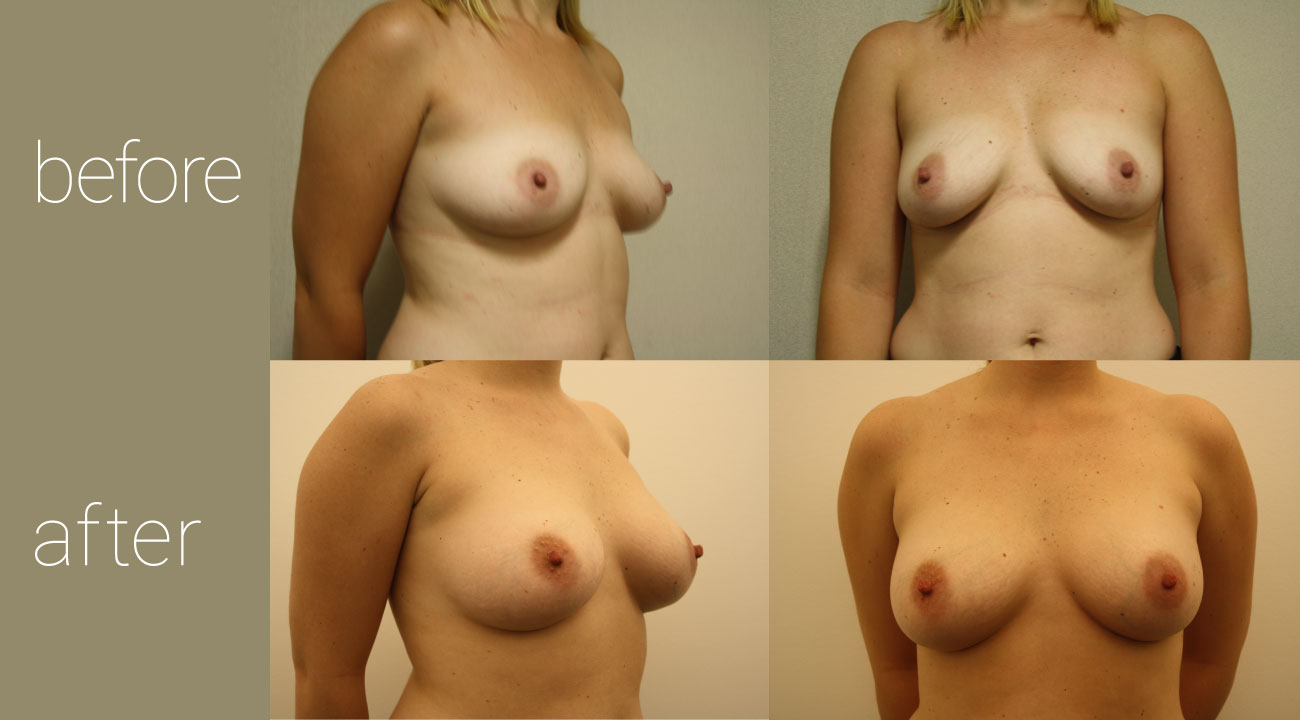 26 year old female | six months status post, 325cc smooth, round submuscular gel implants