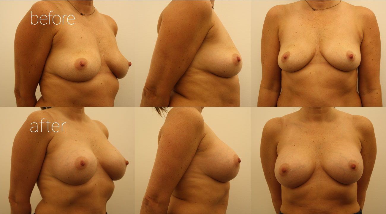39 year old female | six months status post, 345cc smooth, round submuscular gel implants