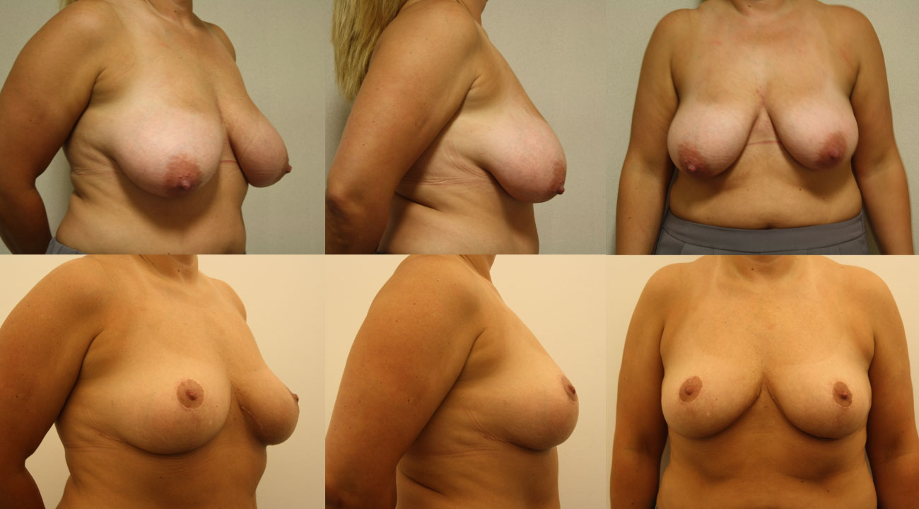 40 year old female | three months status post Reduction Mammaplasty, removal of 306gm from right & 218gm from left