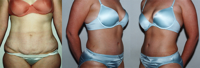ABDOMINOPLASTY | 32 y/o female