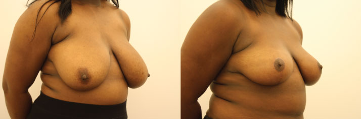 Atalla Plastic Surgery breast reduction image 1