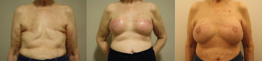 breast reconstruction after mastectomy breast cancer