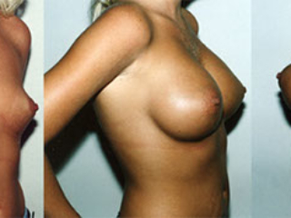 Atalla Plastic Surgery breast augmentation gallery image 3