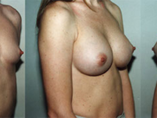 Atalla Plastic Surgery gallery image 4