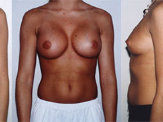 breast augmentation Atalla Plastic Surgery gallery image 1