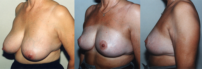 Atalla Plastic Surgery breast reduction image 2