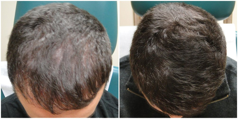 PRP hair restoration Atalla Plastic Surgery