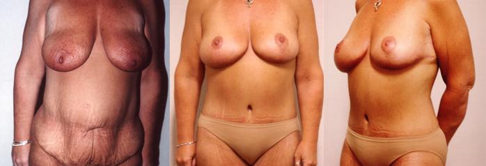 mastopexy-tummytuck 37 y/o female
