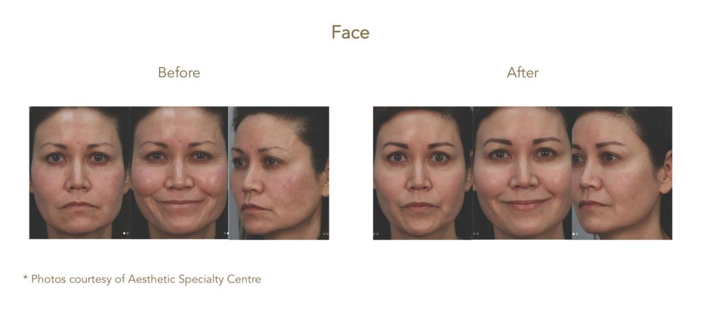 AQUAGOLD® fine touch™ facial rejuvenation
