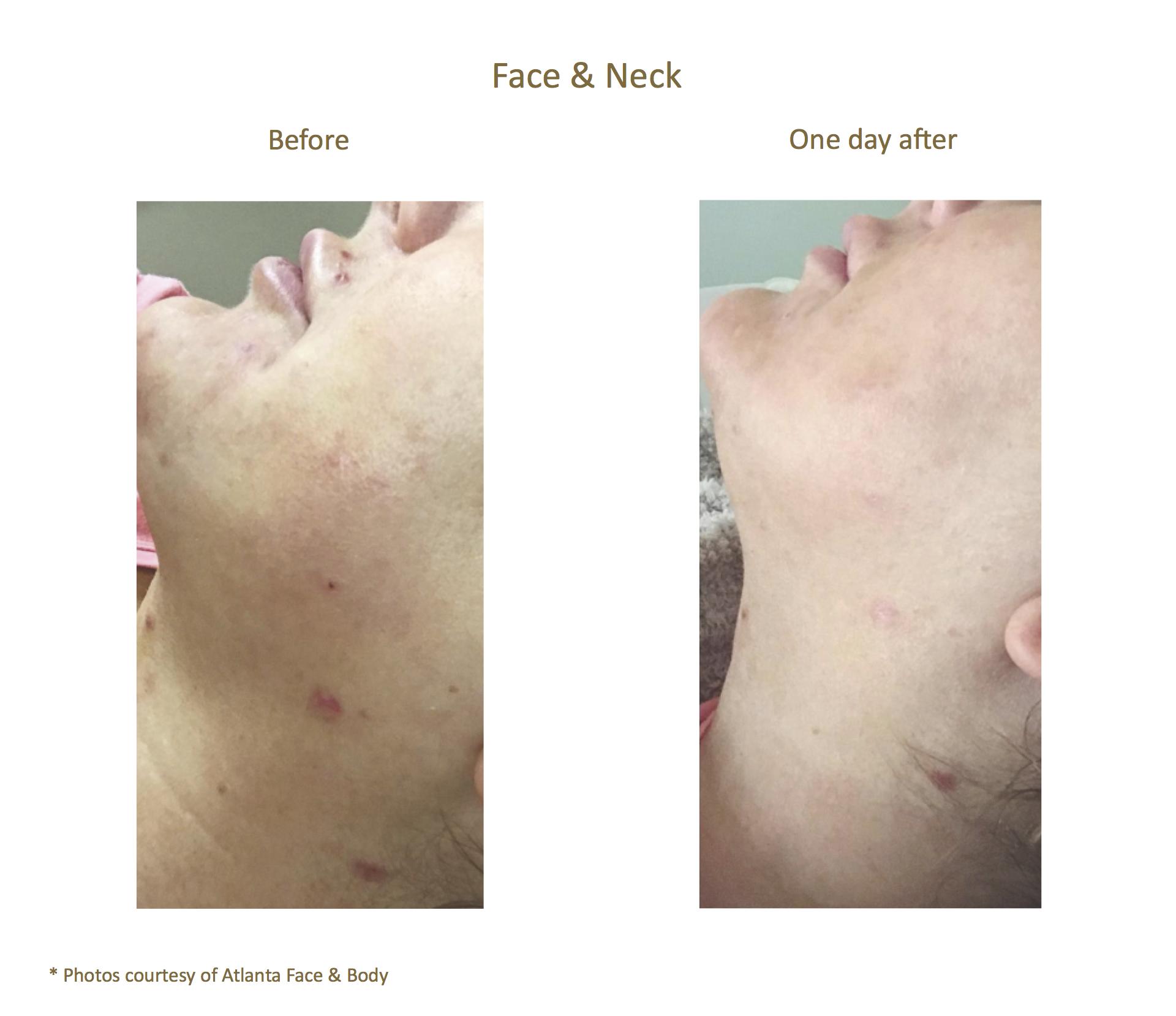 AQUAGOLD® fine touch™ face + neck + acne improvement