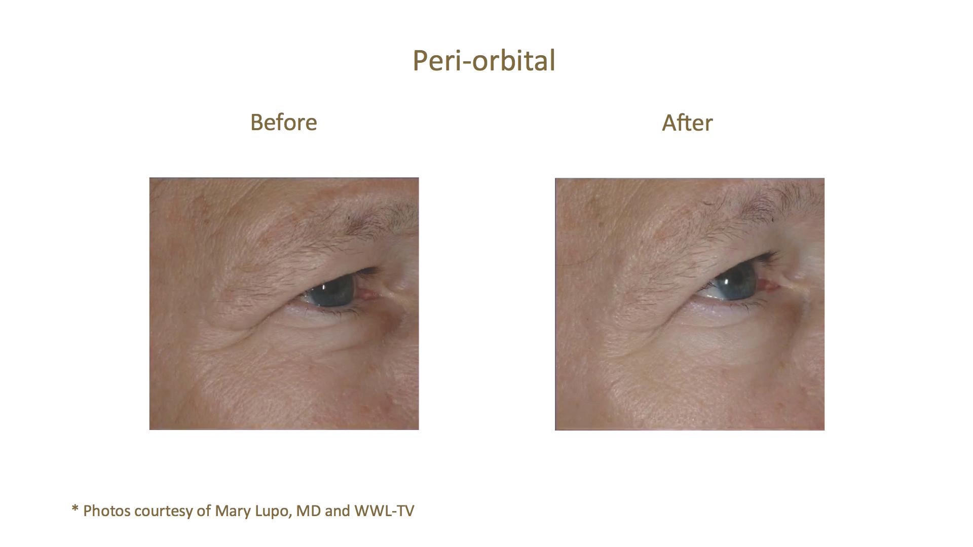 AQUAGOLD® fine touch™ peri-orbital eye treatment