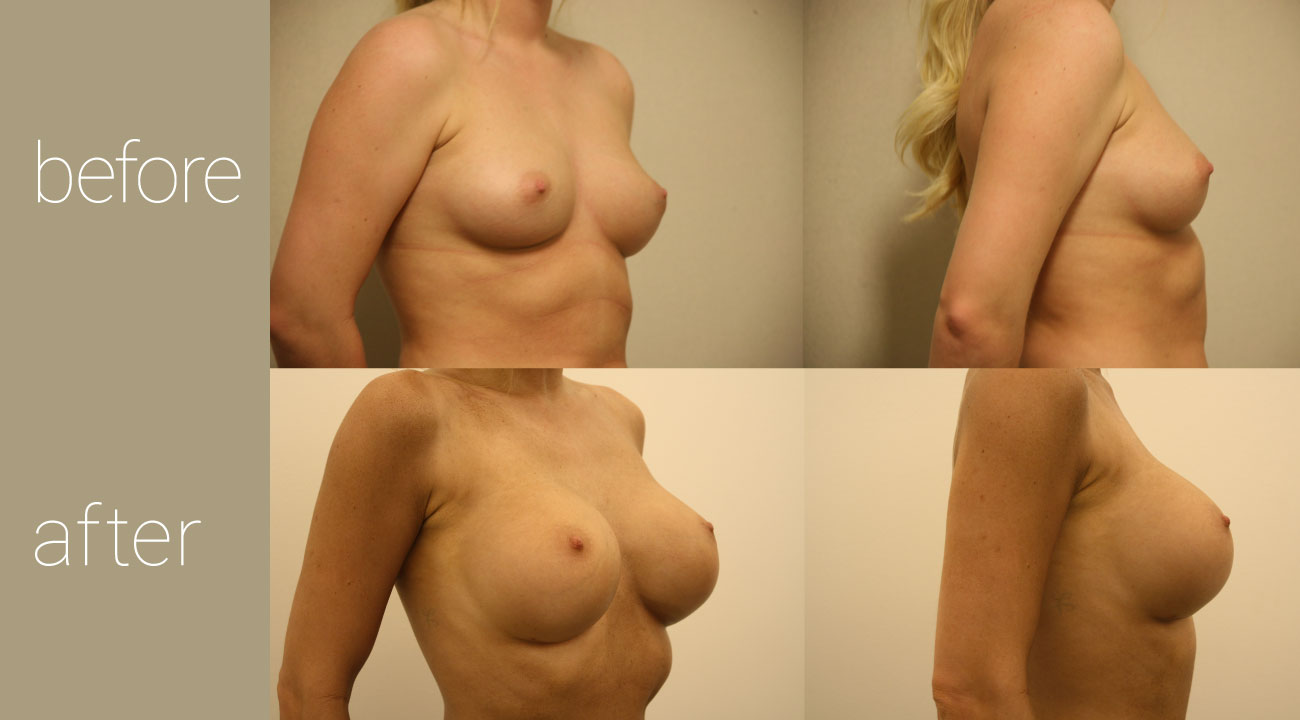 30 year old female 500cc breast augmentation bowling green ky Atalla Plastic Surgery