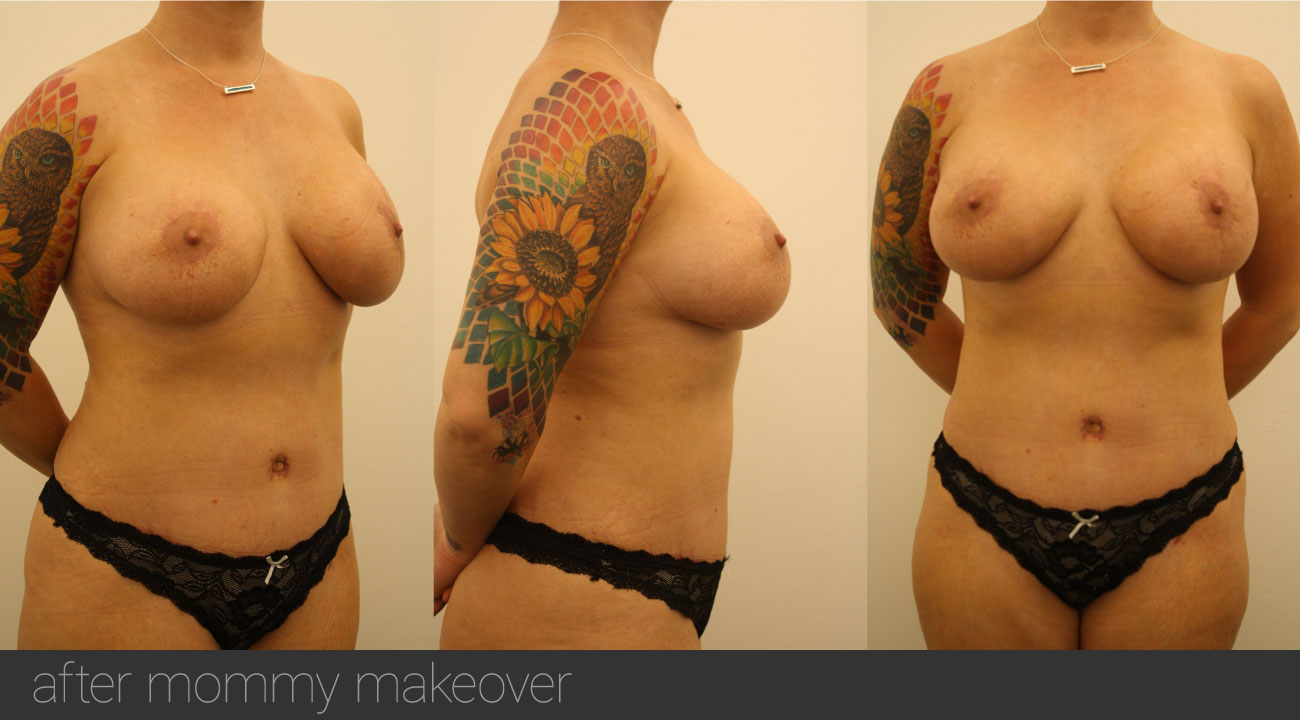 atalla plastic surgery mommy makeover after Bowling Green KY