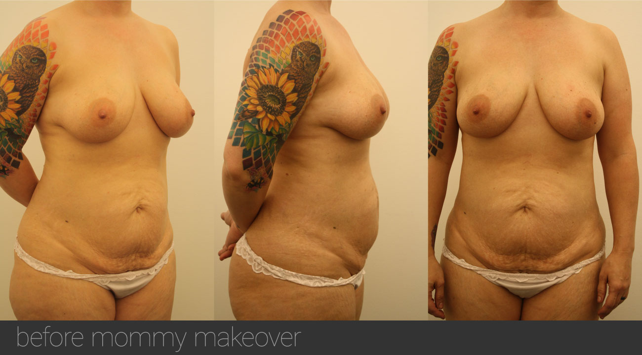 atalla plastic surgery mommy makeover before Bowling Green KY