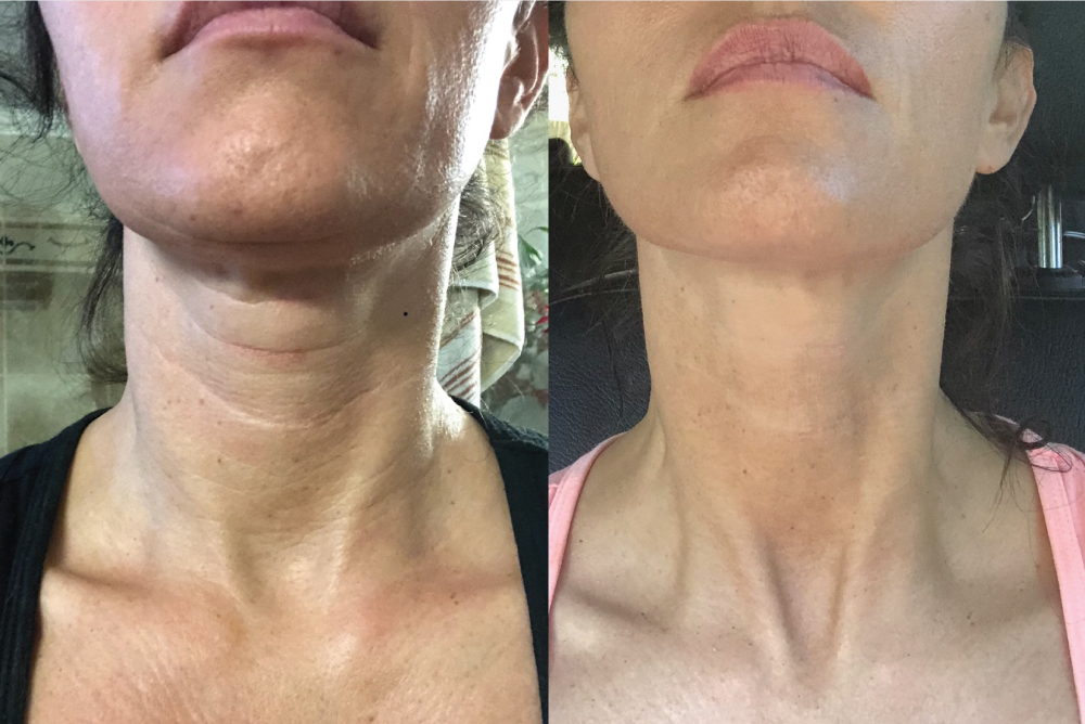 skinade before and neck area