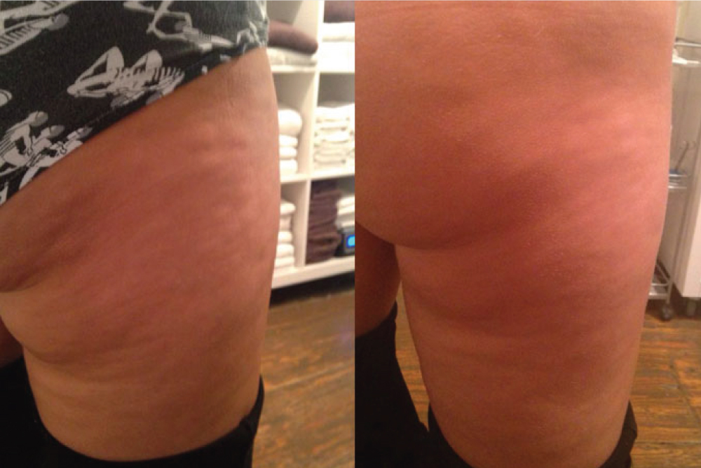 skinade before and after cellulite
