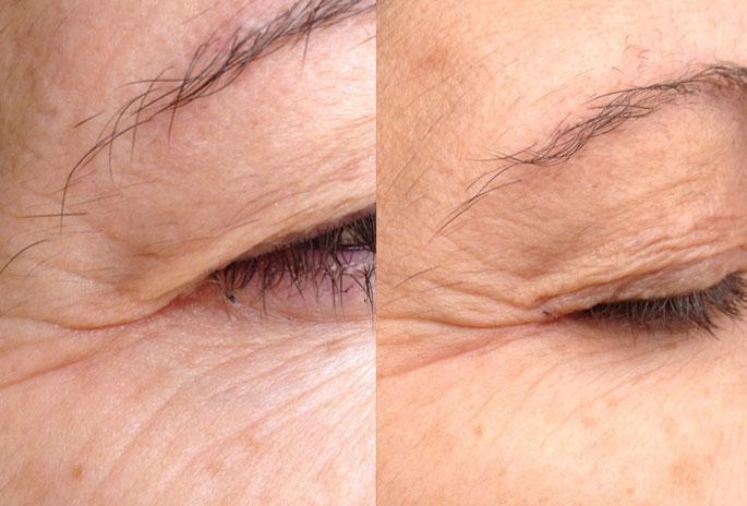 anti-aging skinade