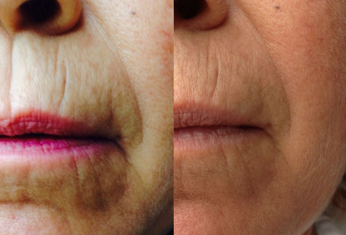 skinade before and after fine lines + wrinkles