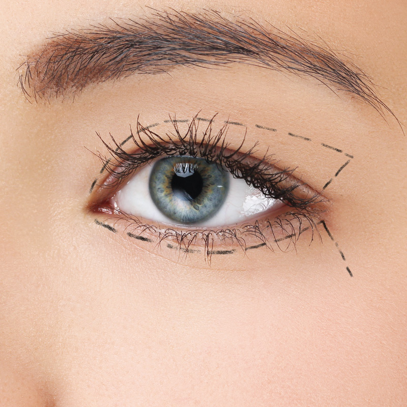 face surgery Bowling Green KY: blepharoplasty