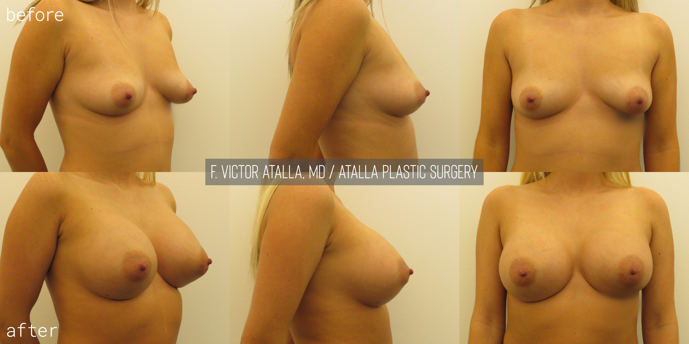 30 year old female | six months status post, 350cc smooth, round submuscular gel implant