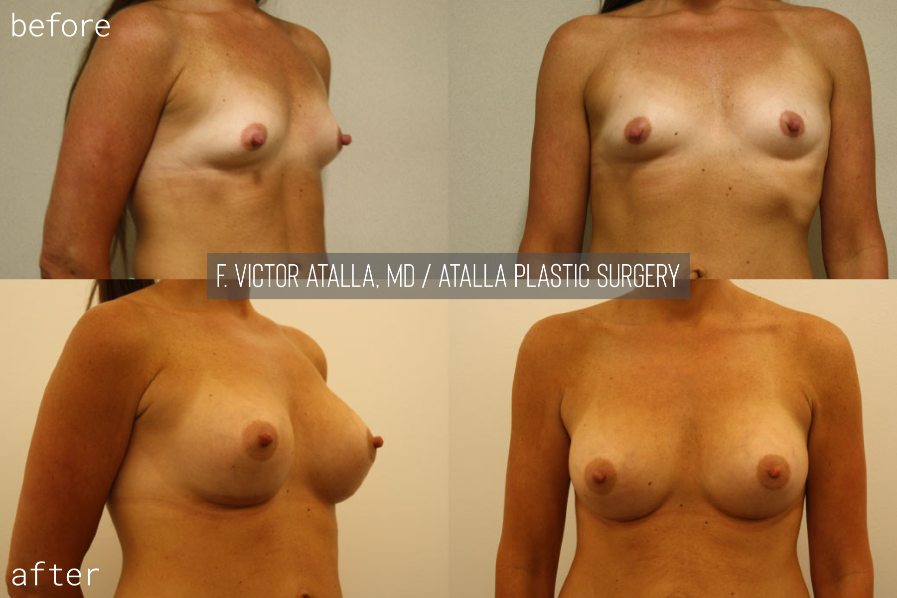 34 year old female | six months status post, 375cc smooth, round submuscular gel implants