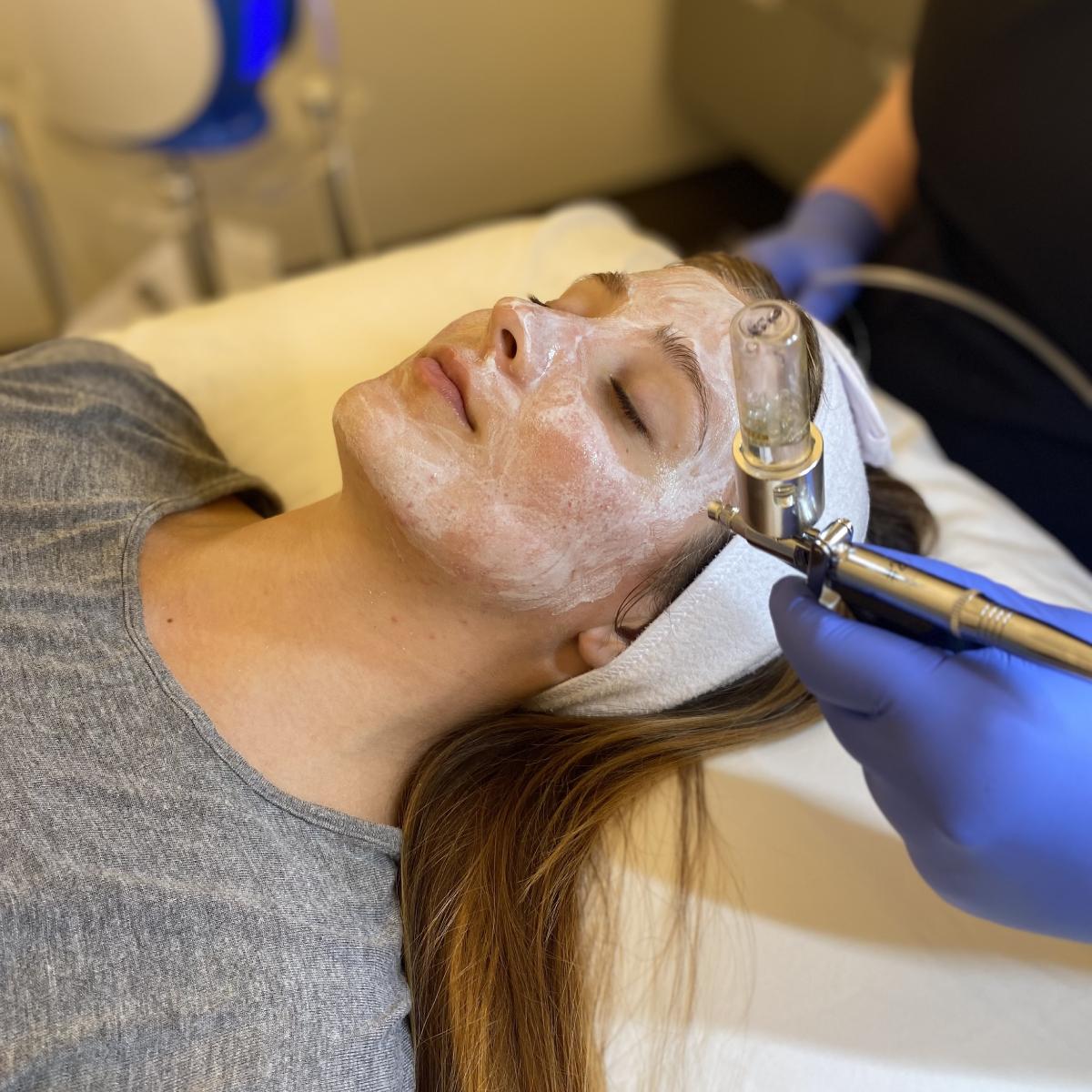 o2toderm oxygen facial atalla plastic surgery